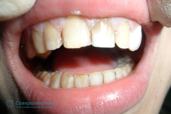 Художественная реставрация при врожденной аномалии развития эмали зубов - Фото ДО