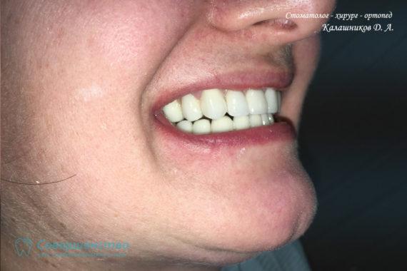 Протезирование металлокерамикой на имплантах и обточенных зубах - Фото 11