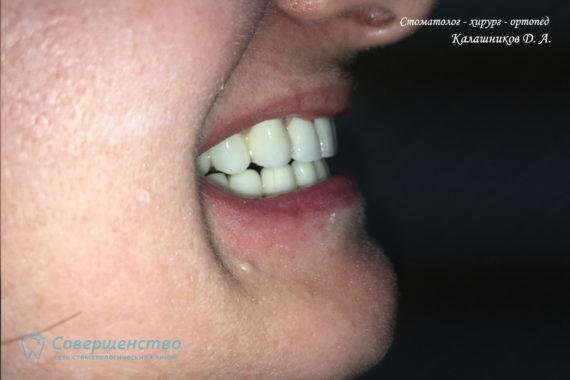 Протезирование металлокерамикой на имплантах и обточенных зубах - Фото 12