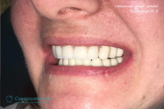 Протезирование металлокерамикой на имплантах и обточенных зубах - Фото 13