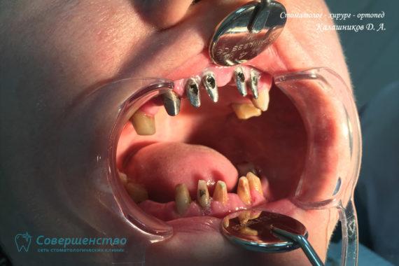 Протезирование металлокерамикой на имплантах и обточенных зубах - Фото 2
