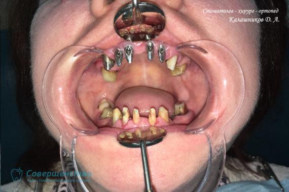 Протезирование металлокерамикой на имплантах и обточенных зубах - Фото 3