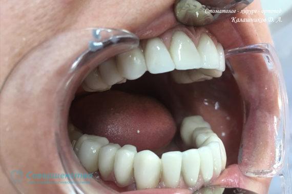 Протезирование металлокерамикой на имплантах и обточенных зубах - Фото 4