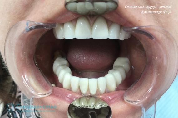 Протезирование металлокерамикой на имплантах и обточенных зубах - Фото 5