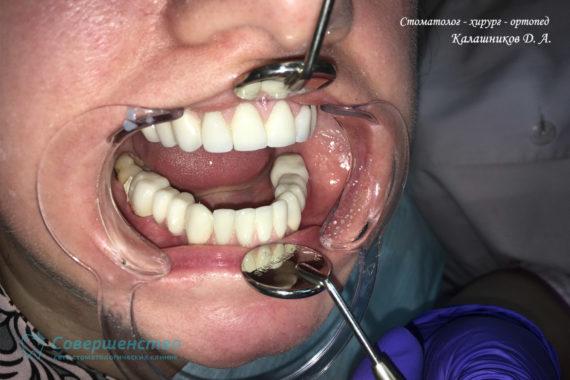 Протезирование металлокерамикой на имплантах и обточенных зубах - Фото 8