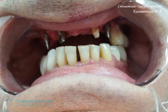 Ортопедия - Клинический случай №1. Протезирование на имплантах - Фото 1