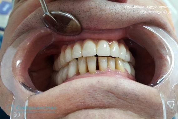 Ортопедия - Клинический случай №1. Протезирование на имплантах - Фото 10