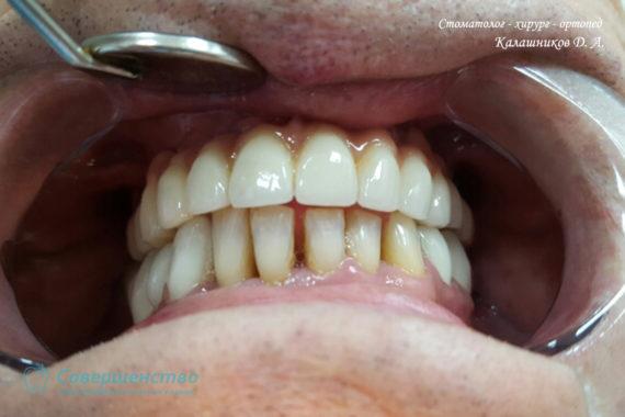 Ортопедия - Клинический случай №1. Протезирование на имплантах - Фото 11
