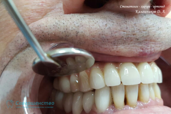 Ортопедия - Клинический случай №1. Протезирование на имплантах - Фото 12