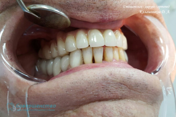 Ортопедия - Клинический случай №1. Протезирование на имплантах - Фото 14