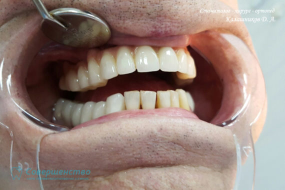 Ортопедия - Клинический случай №1. Протезирование на имплантах - Фото 15