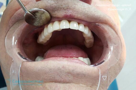 Ортопедия - Клинический случай №1. Протезирование на имплантах - Фото 16