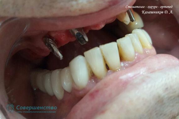 Ортопедия - Клинический случай №1. Протезирование на имплантах - Фото 2