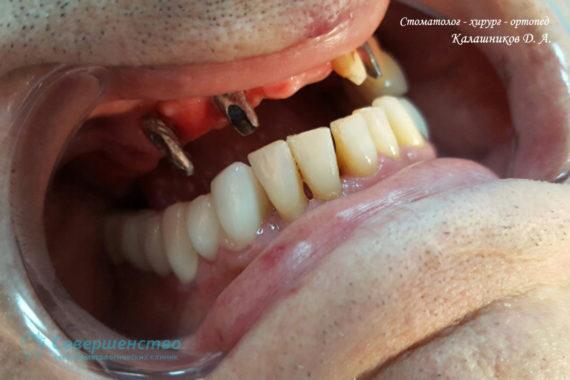 Ортопедия - Клинический случай №1. Протезирование на имплантах - Фото 3