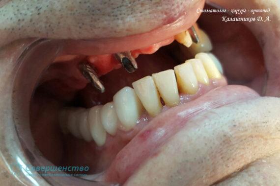 Ортопедия - Клинический случай №1. Протезирование на имплантах - Фото 4