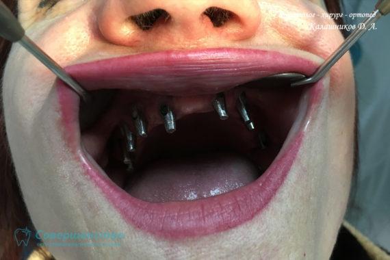 Протезирование - Протезирование на имплантах при полном отсутствии зубов с наращиванием костного гребня - Фото 2