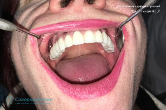 Протезирование - Протезирование на имплантах при полном отсутствии зубов с наращиванием костного гребня - Фото 3