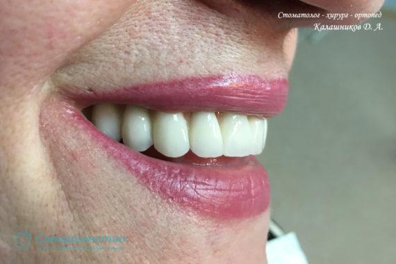 Протезирование - Протезирование на имплантах при полном отсутствии зубов с наращиванием костного гребня - Фото 5