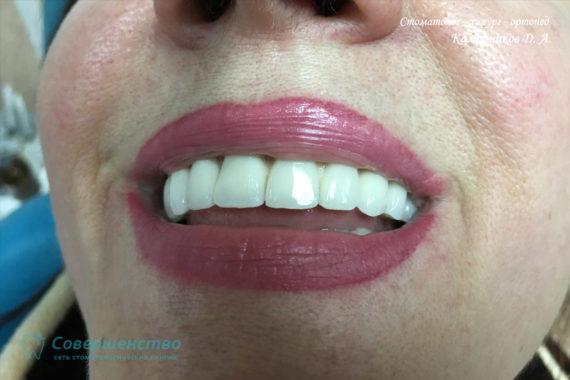 Протезирование - Протезирование на имплантах при полном отсутствии зубов с наращиванием костного гребня - Фото 6