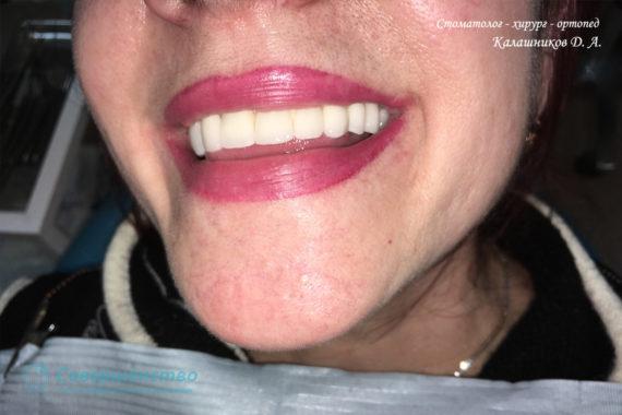 Протезирование - Протезирование на имплантах при полном отсутствии зубов с наращиванием костного гребня - Фото 7