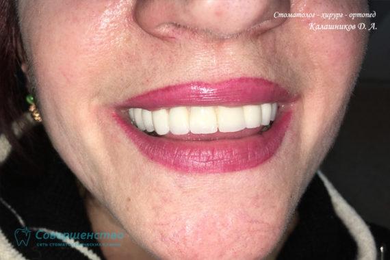 Протезирование - Протезирование на имплантах при полном отсутствии зубов с наращиванием костного гребня - Фото 8