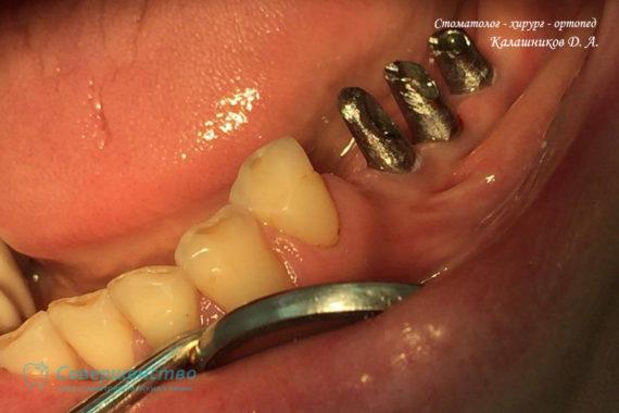 Имплантация - Установка абатментов в импланты с последующим протезированием металлокерамическими коронками - Фото 4